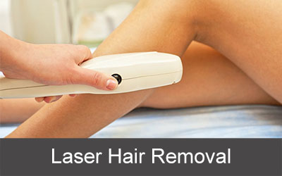 Laser hair removal-sample