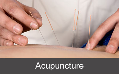 Service-Buttons_Acupuncture